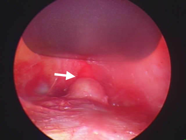 Diagnosing And Treatment Of Skull Lesions & Dermoid Cysts ...