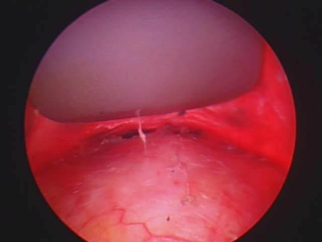 Diagnosing And Treatment Of Skull Lesions & Dermoid Cysts